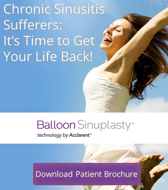 Balloon Sinuplasty Los Angeles California